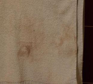 """""""frisches"""" Handtuch mit ekligen Flecken Hotel Pousada da Luz"""